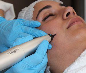 skin tag removal ashford