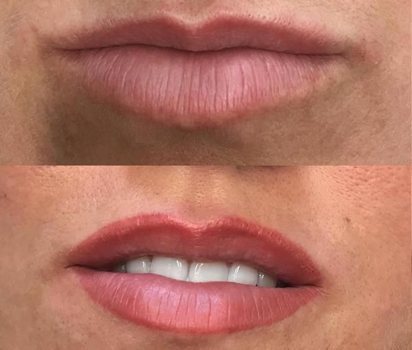 SPMU Lips 7