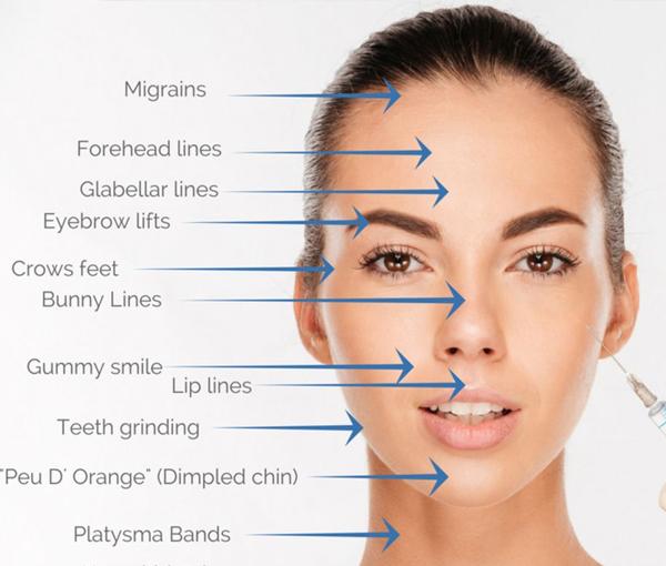 Botox 8