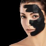 Carbon Laser Facial 3