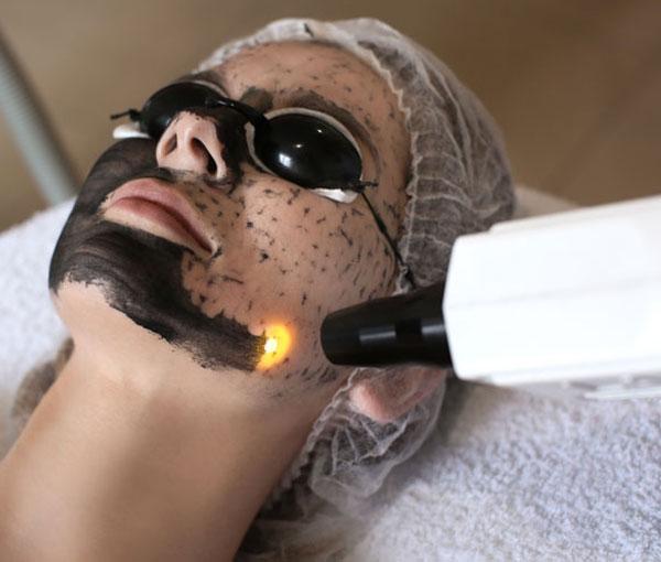 Carbon Laser Facial 6
