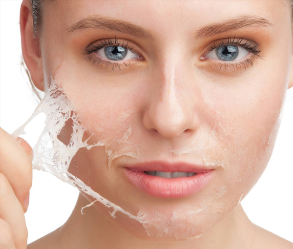 Glo Chemical Skin Peels 5