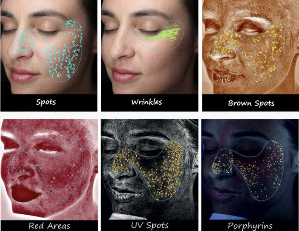 VISIA Skin Analysis 5