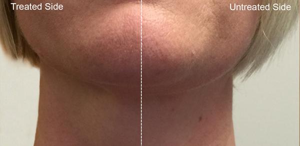 Forma: Skin Tightening Face Lift 4