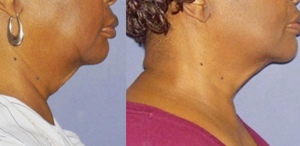 Forma: Skin Tightening Face Lift 2