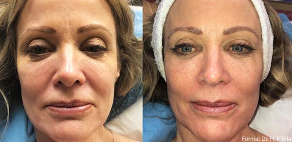 Forma: Skin Tightening Face Lift 7