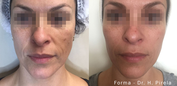 Forma: Skin Tightening Face Lift 6