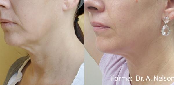 Forma: Skin Tightening Face Lift 10