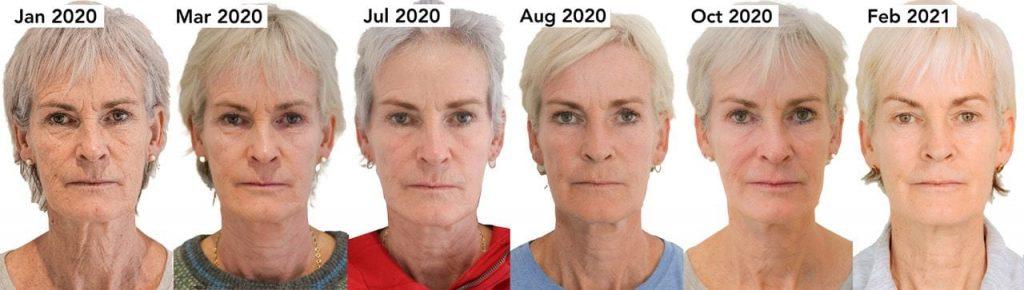 morpheus8 skin tightening treatment