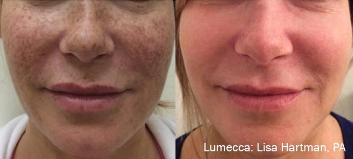 Lumecca IPL: Advanced Skin Rejuvenation 3