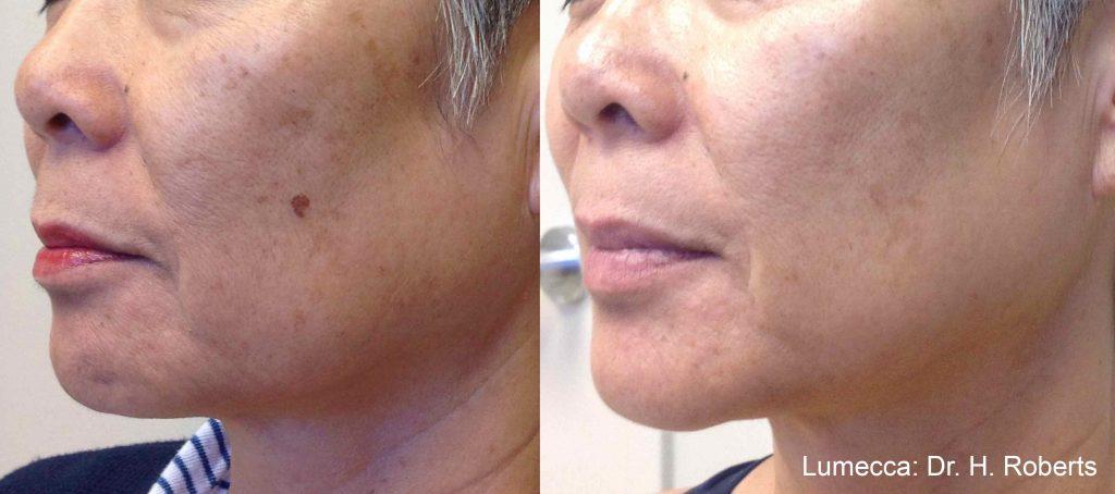 Lumecca IPL: Advanced Skin Rejuvenation 5