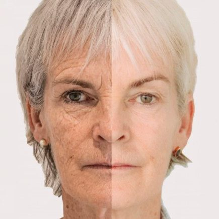 Morpheus-8-treatment-All-you-need-to-know-about-Judy-Murrays-facelift.001
