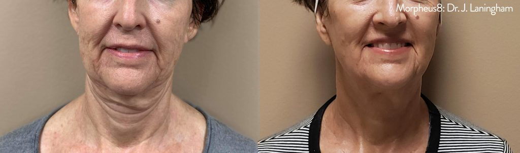 morpheus8 before and after chin and neck