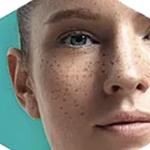 Lumecca IPL: Advanced Skin Rejuvenation 7
