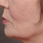 Forma: Skin Tightening Face Lift 9