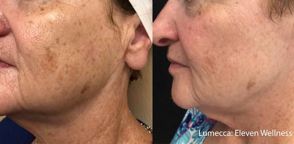 Lumecca IPL: Advanced Skin Rejuvenation 15