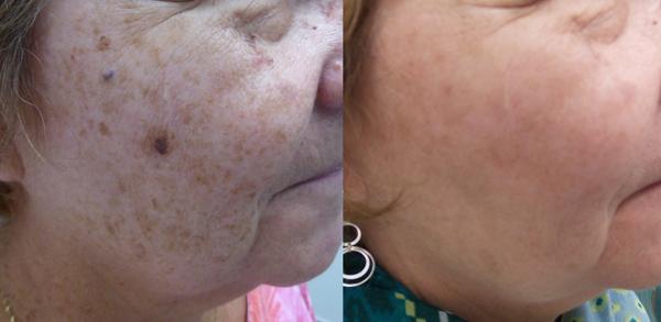 Lumecca IPL: Advanced Skin Rejuvenation 14