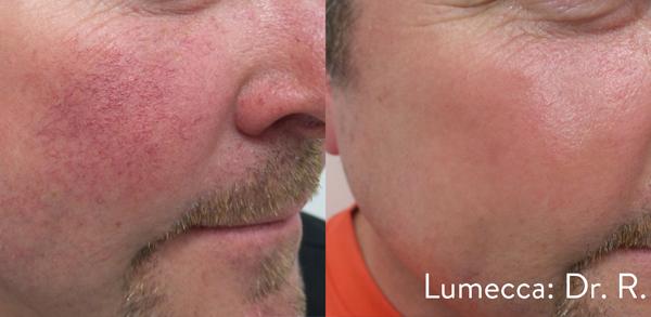 Lumecca IPL: Advanced Skin Rejuvenation 13