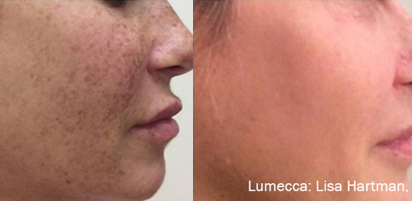 Lumecca IPL: Advanced Skin Rejuvenation 12