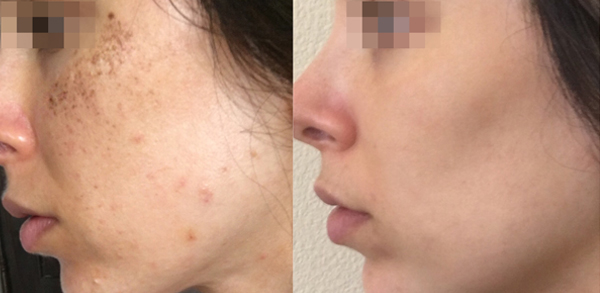Lumecca IPL: Advanced Skin Rejuvenation 11