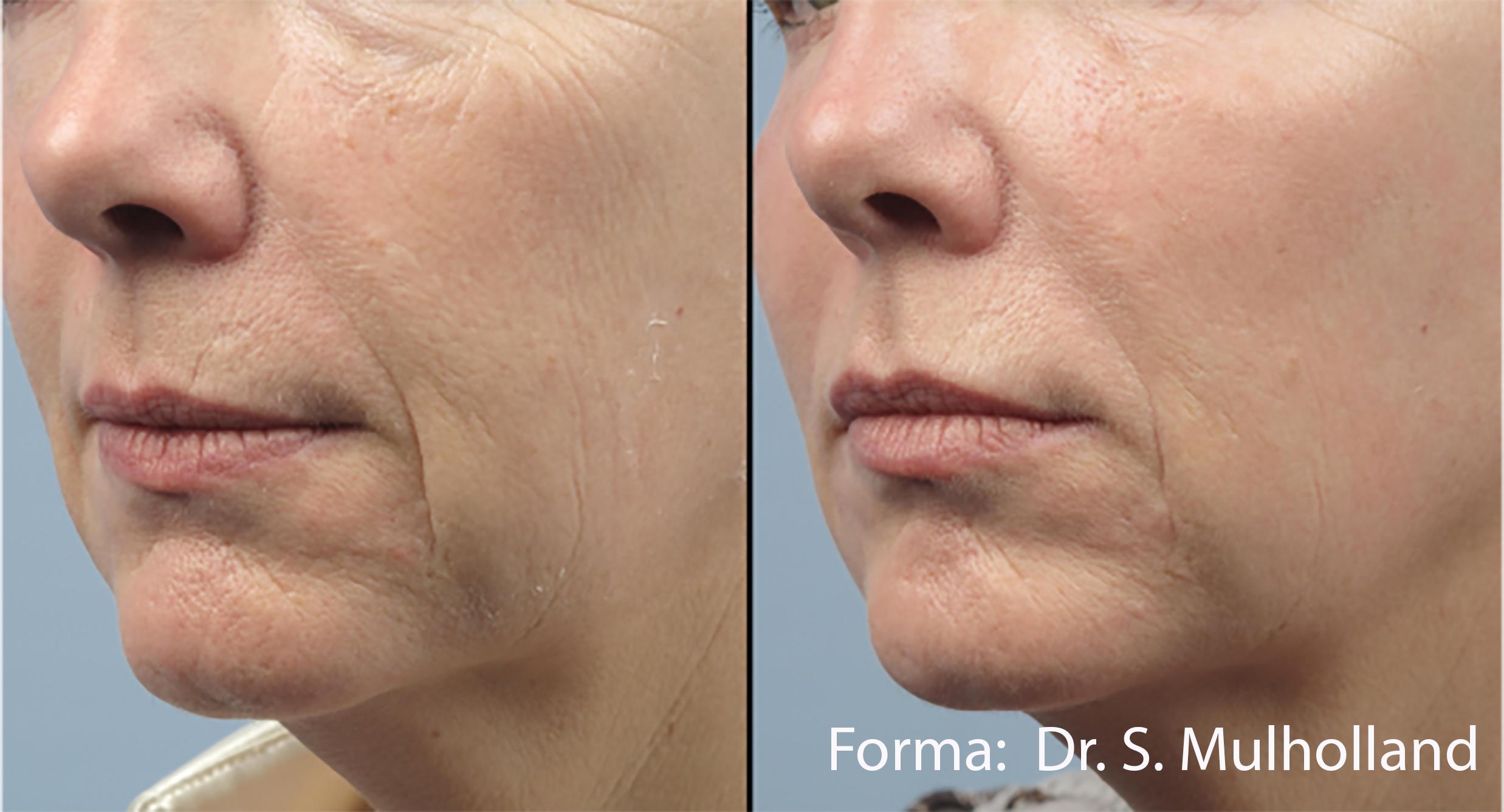 Forma: Skin Tightening Face Lift 11