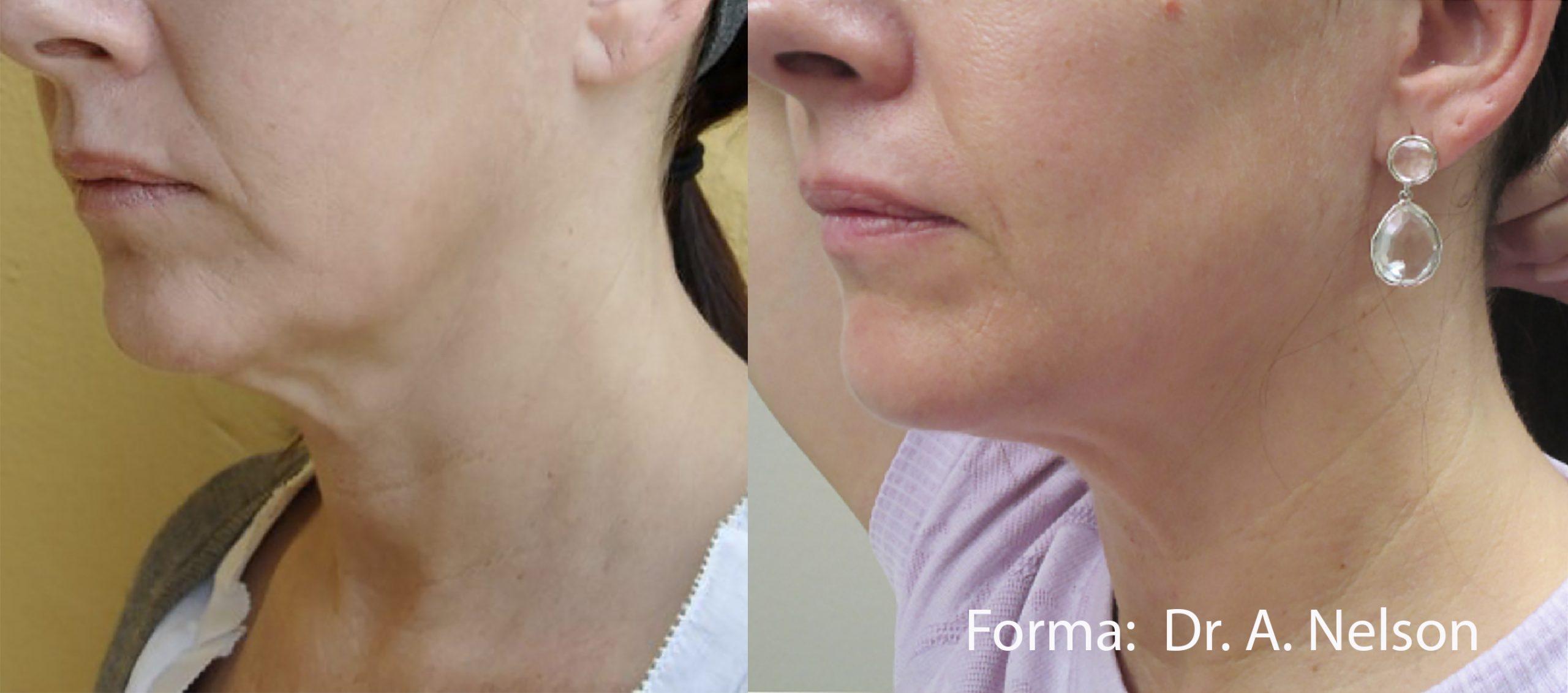 Forma: Skin Tightening Face Lift 14