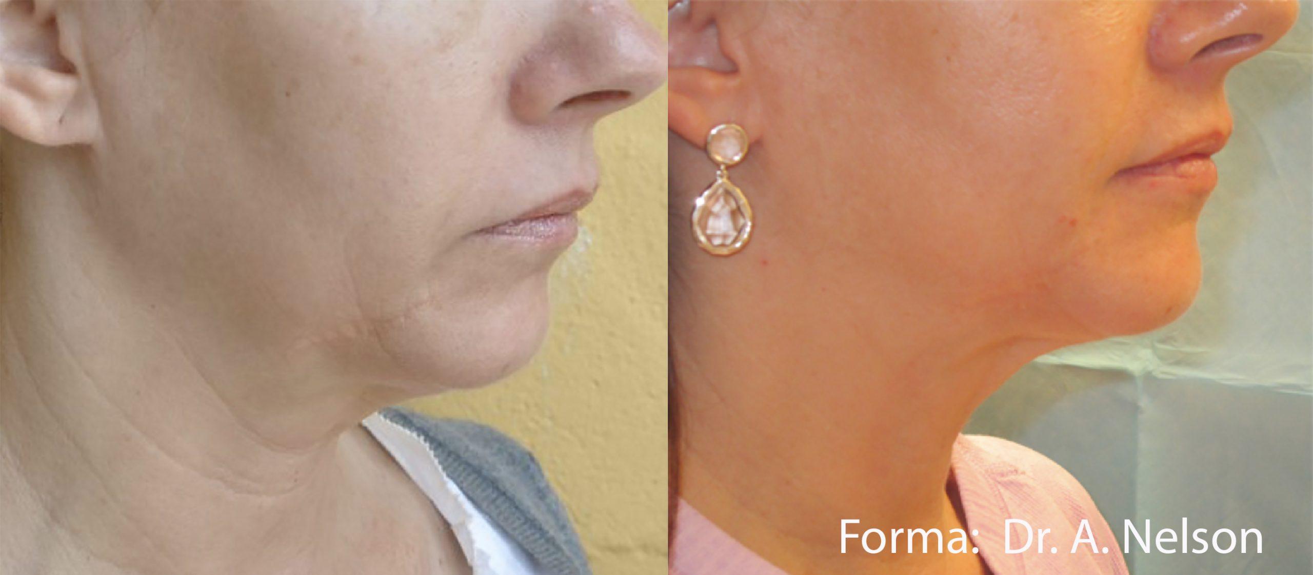 Forma: Skin Tightening Face Lift 13
