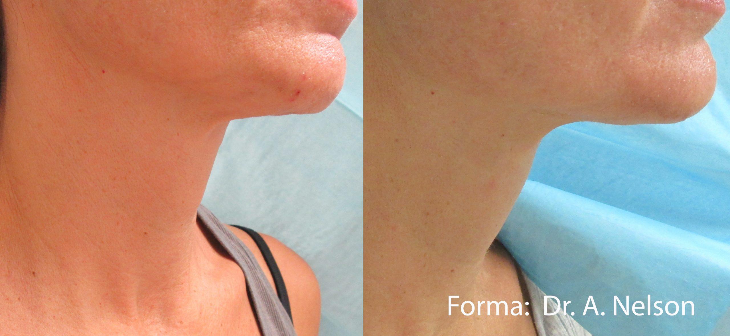 Forma: Skin Tightening Face Lift 12