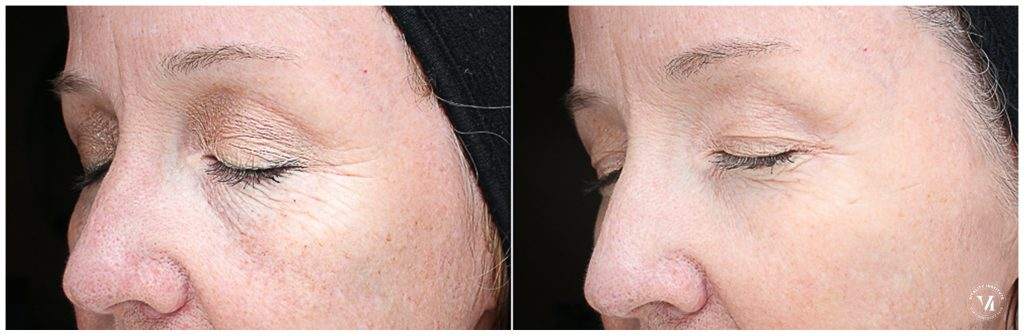 The VI Peel for brighter & smoother skin 7