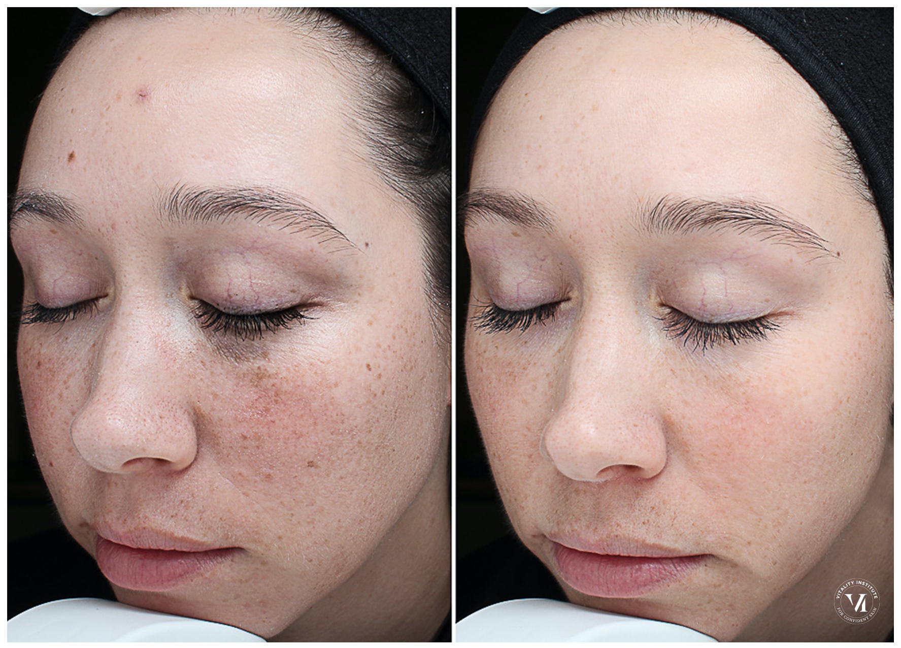 The VI Peel for brighter & smoother skin 11