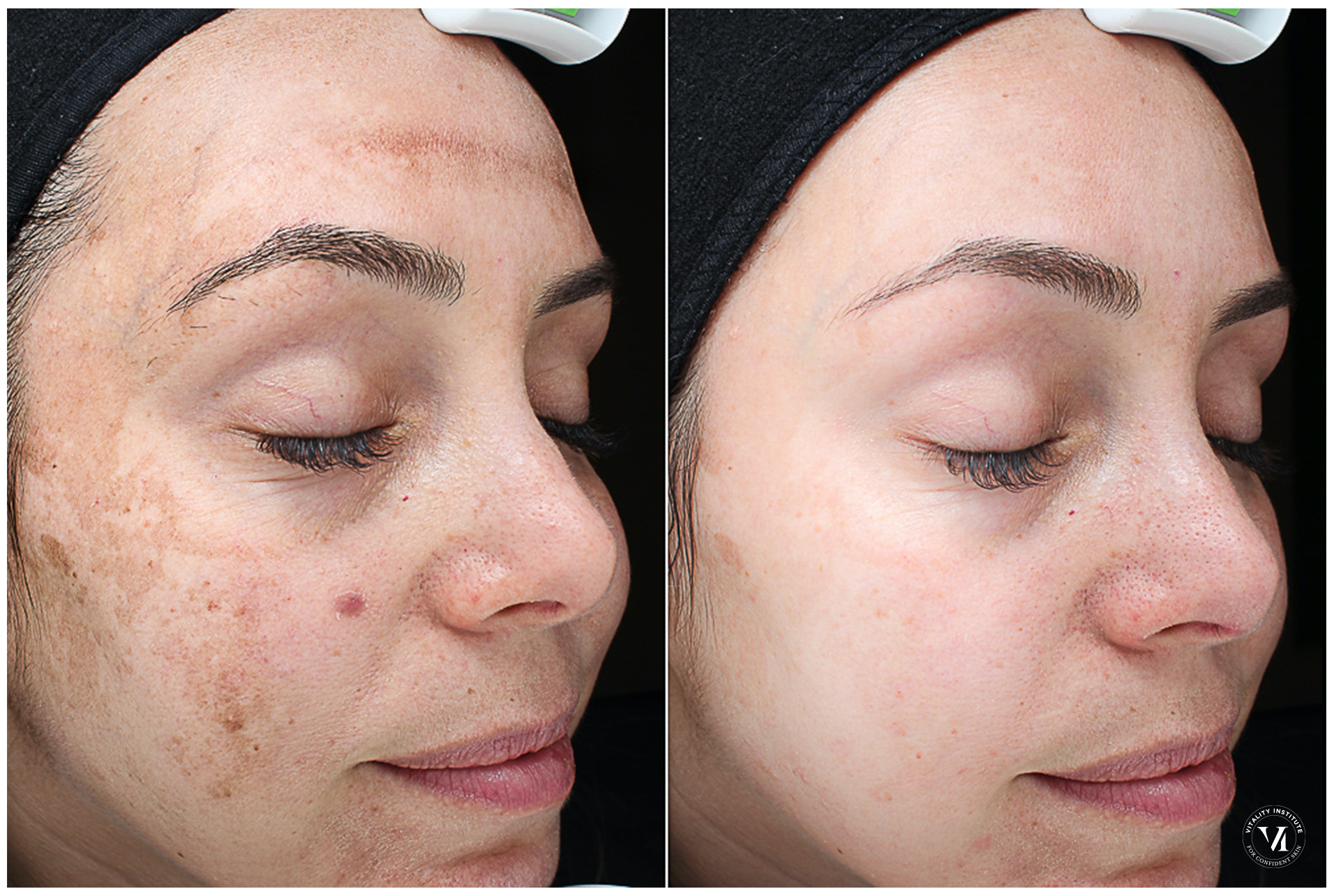 The VI Peel for brighter & smoother skin 10