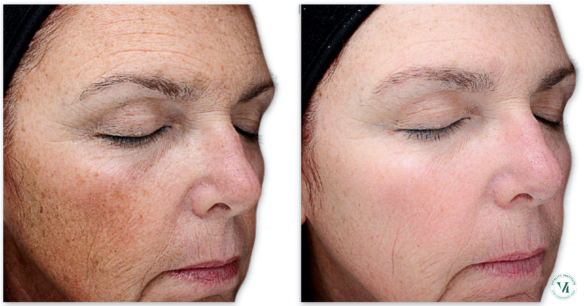 The VI Peel for brighter & smoother skin 14