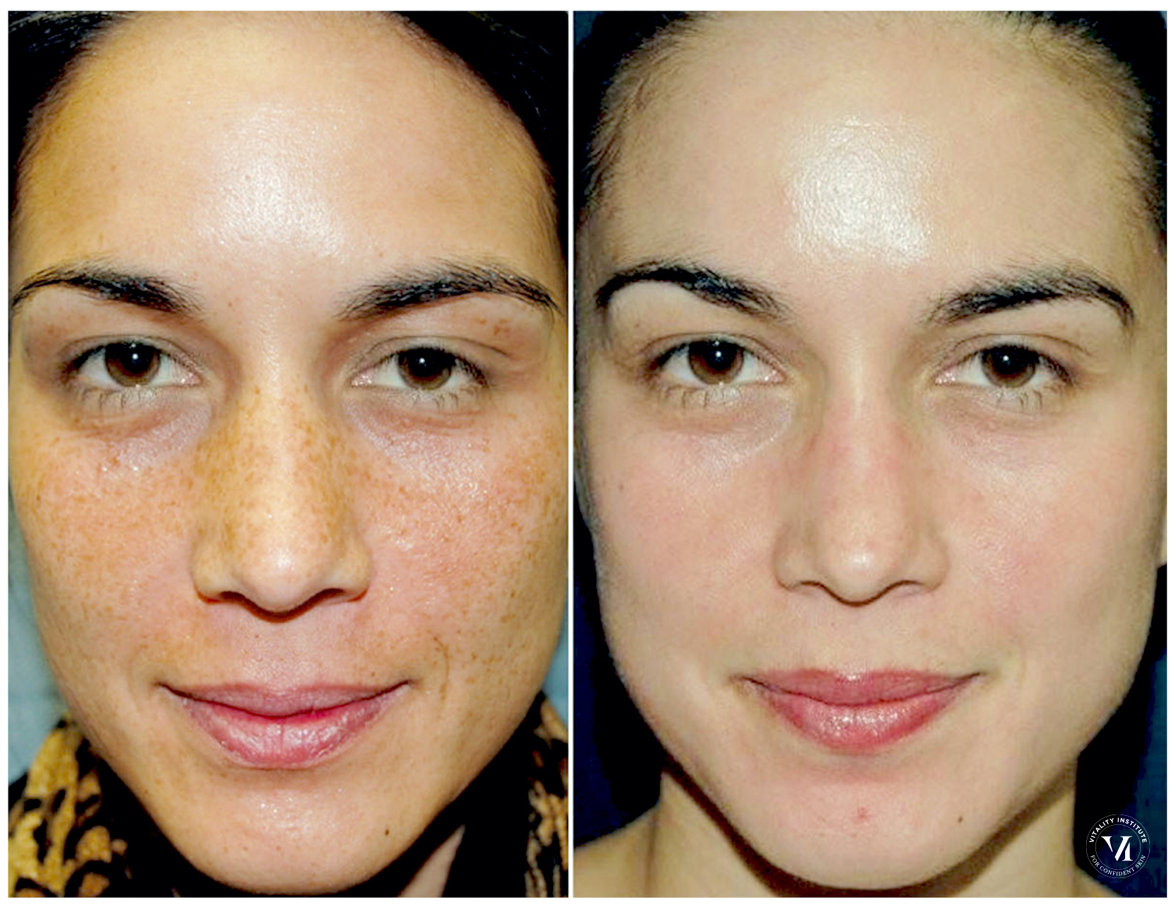 The VI Peel for brighter & smoother skin 8