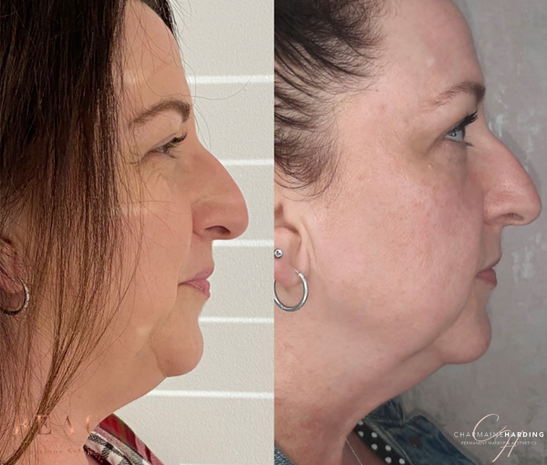 Double Chin Removal