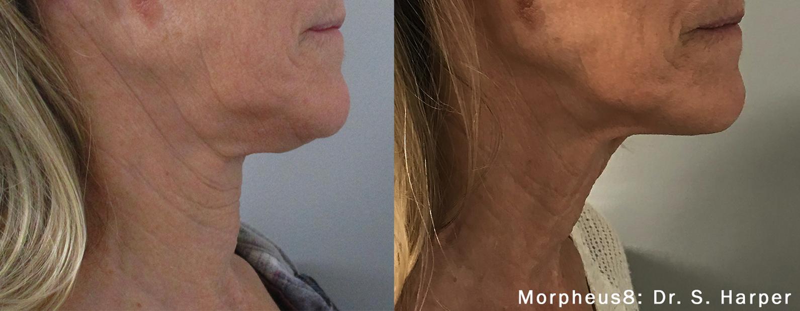 Morpheus8 Skin Tightening Chin Lift