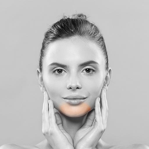 Chin laser hair removal soprano ashford kent