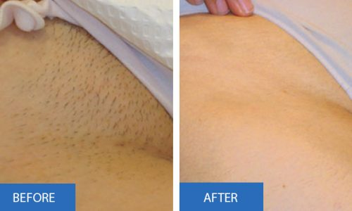 Laser Hair Removal Results Intimate