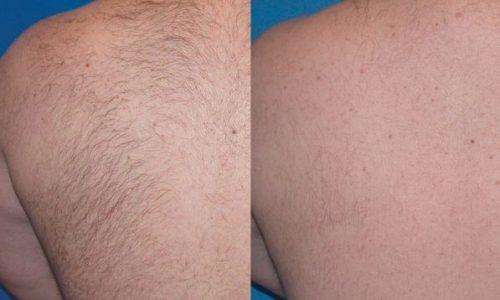 Soprano Titanium Laser Hair Removal 13