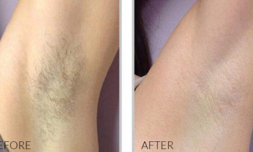 Soprano Titanium Laser Hair Removal 14