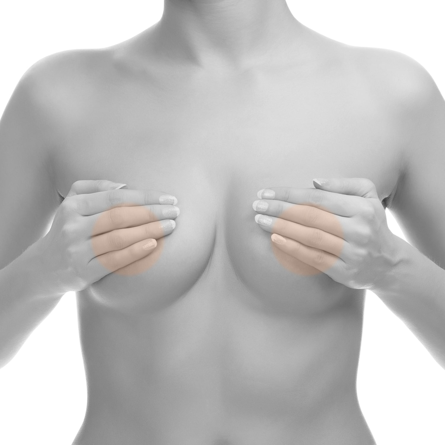 areolas-laser-hair-removal