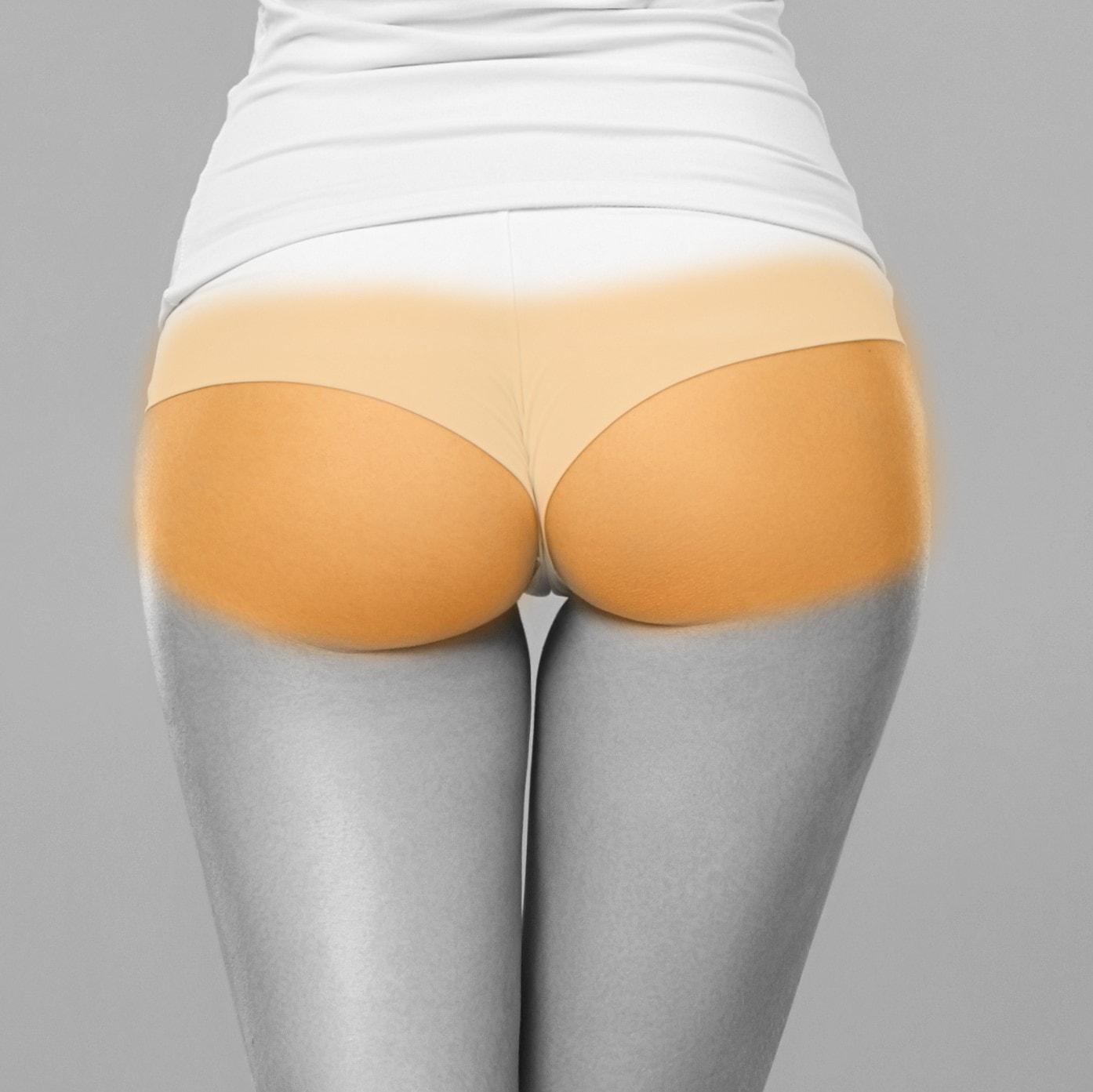buttocks laser hair removal ashford kent